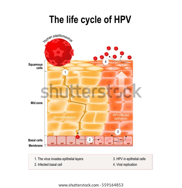 Does hpv that causes cancer cause warts. Hpv that causes cancer and warts - topvacanta.ro