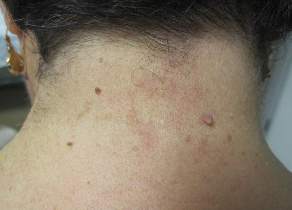 Papiloma fibroepitelial da pele Papiloma fibroepitelial escamoso