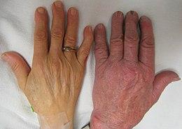 Anemia (scaderea hemoglobinei)