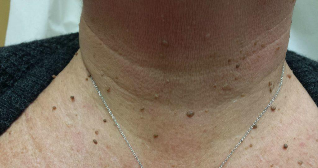 Dispozitiv Heltiq Skin Tags, pentru tratamentul papiloamelor, 38 ml - topvacanta.ro
