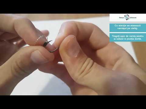 suspendarea viermilor medicament imagini cu paraziți cu cuc