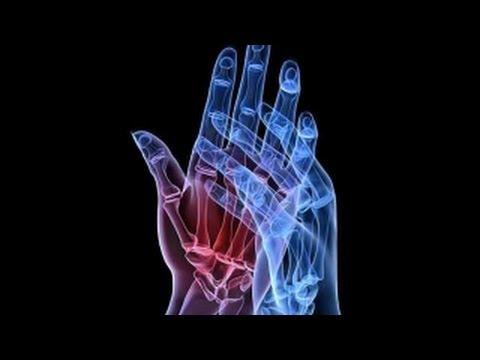Un ulcer între degetele de la picioare Picior diabetic