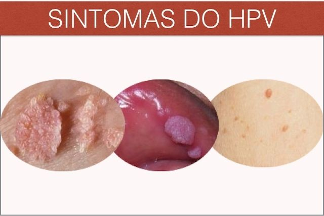 negi cervicale este tratament virus hpv la barbati