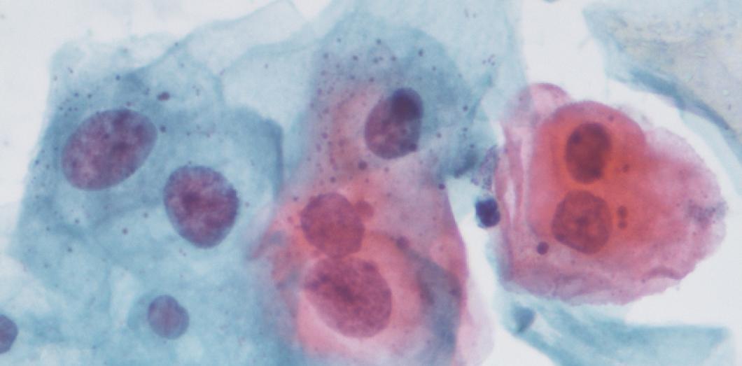 Contamination papillomavirus chez lhomme.