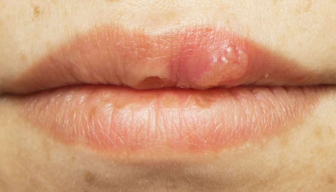 Benign wart in mouth Wart to mouth