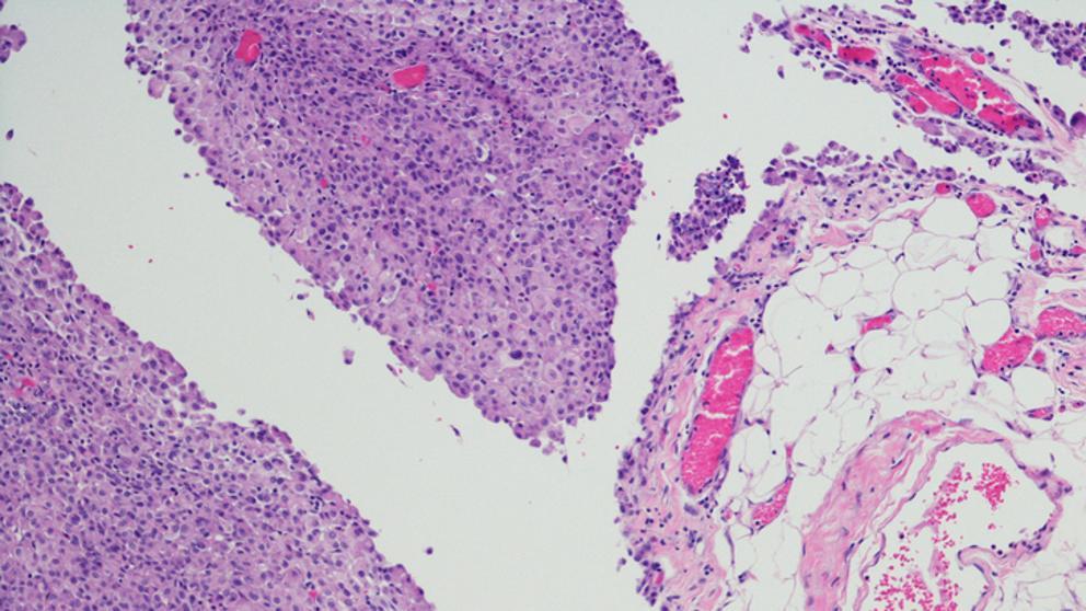 Cancer peritoneal avanzado esperanza de vida,