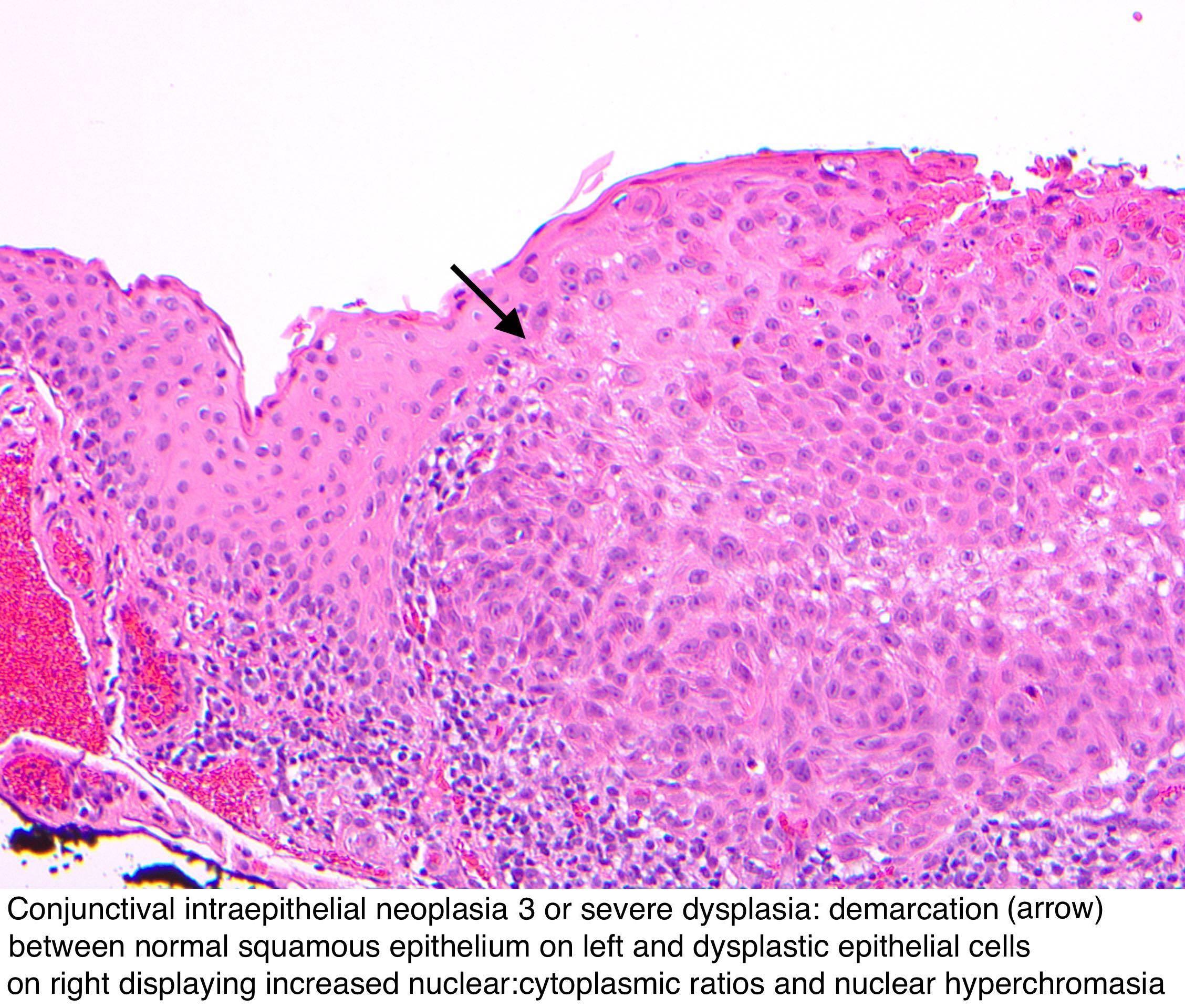 vaccino papilloma virus inattivato meniu detoxifiere colon