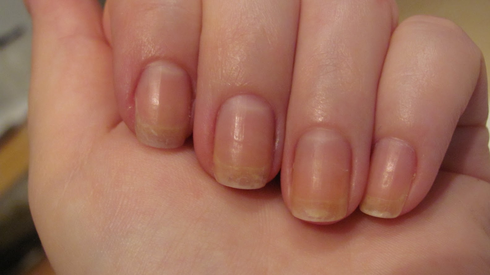 Tumorile maligne ale unghiilor - semne şi simptome Simptome cancer unghie