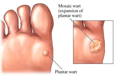 Ingrown wart on foot removal