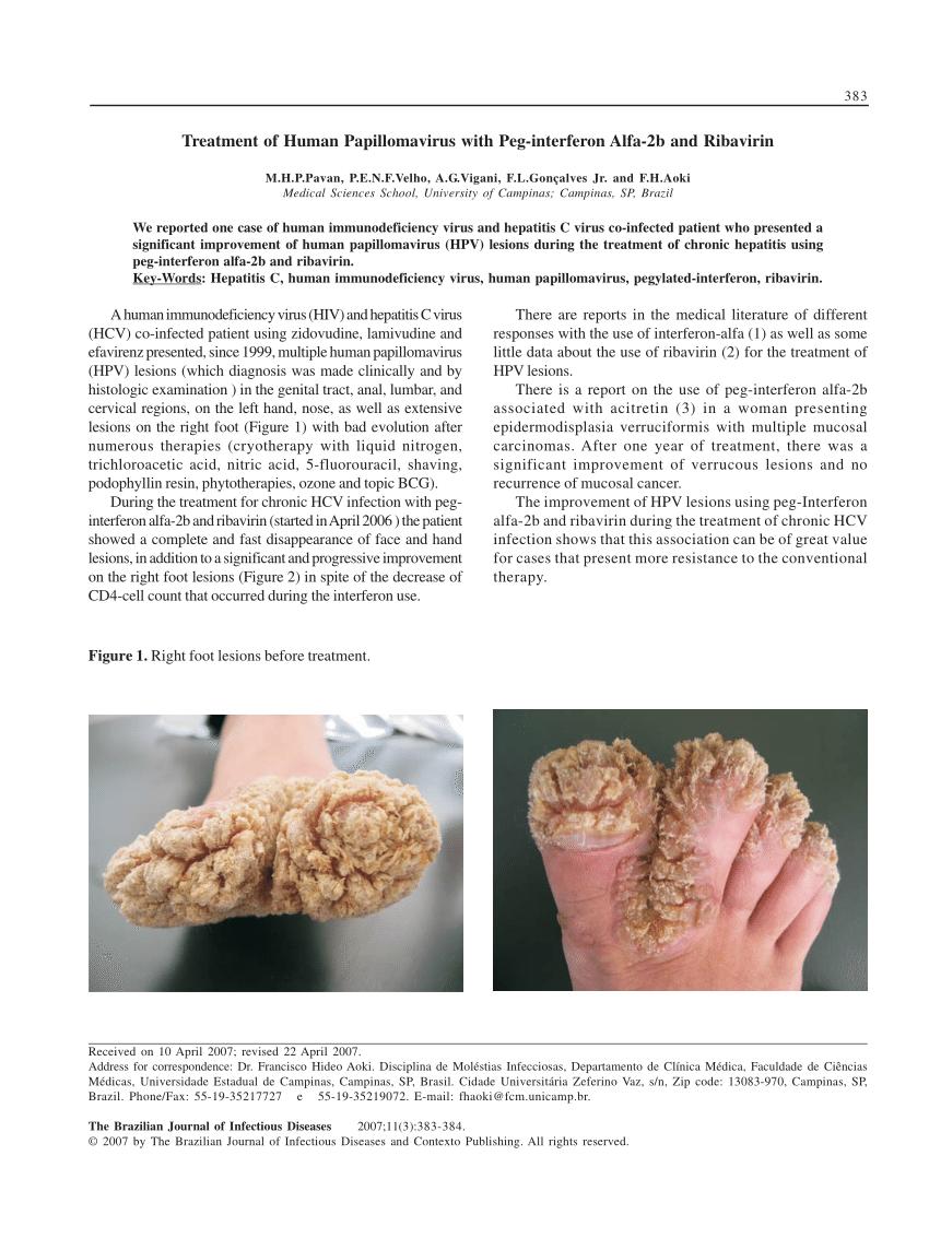 Human papiloma virus lesions