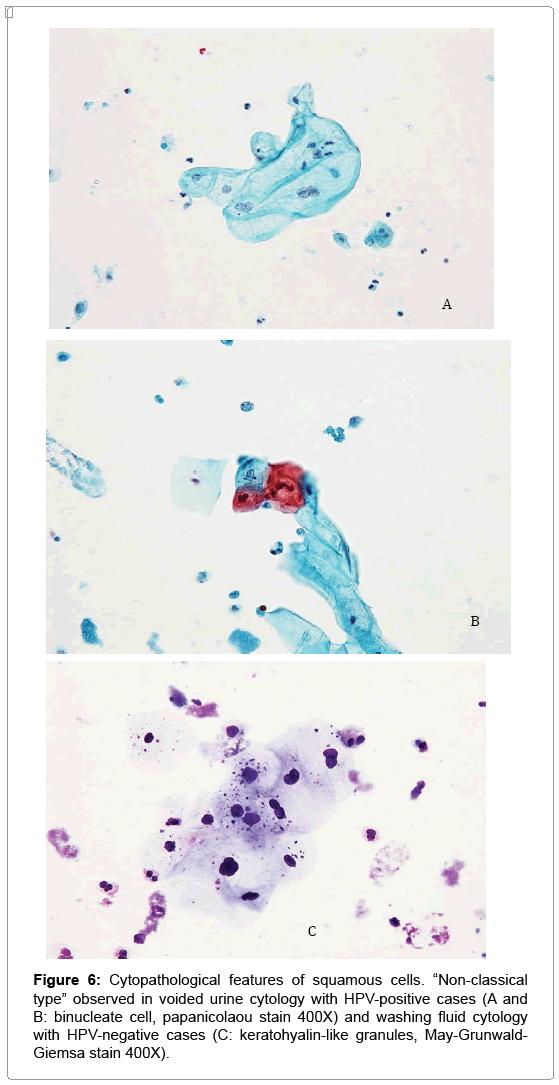 Papilloma virus analisi urine