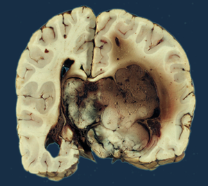Oxiurose causa doenca - Atypical choroid plexus papilloma icd 10