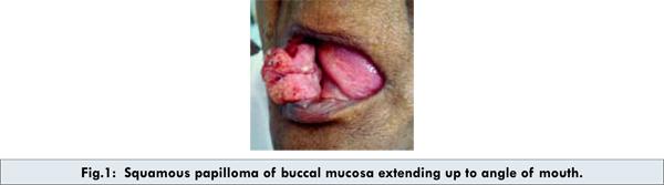 cancer mamar mx papilom gel clarinol