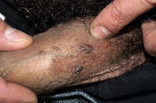 How to remove warts and papilloma