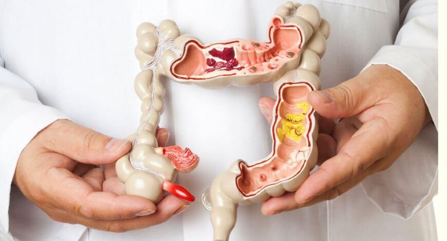 simptome de detoxifiere după colon