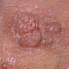infection a papillomavirus chez l homme