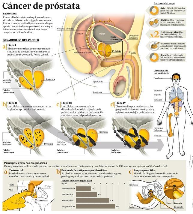 Cancer de prostata fase 4 Cancer de pancreas fase 4, Ciroza: cauze și simptome