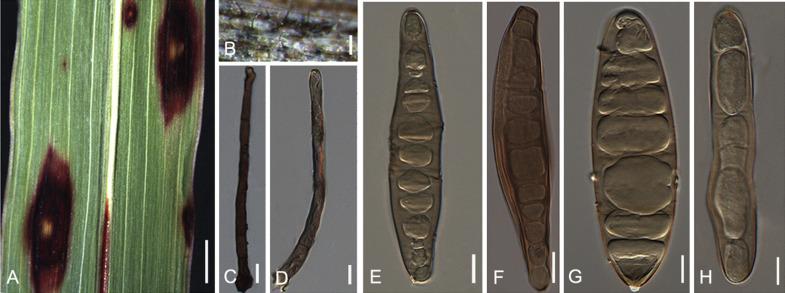 wart on foot or blister cryopharma pentru tratamentul verucilor plantare