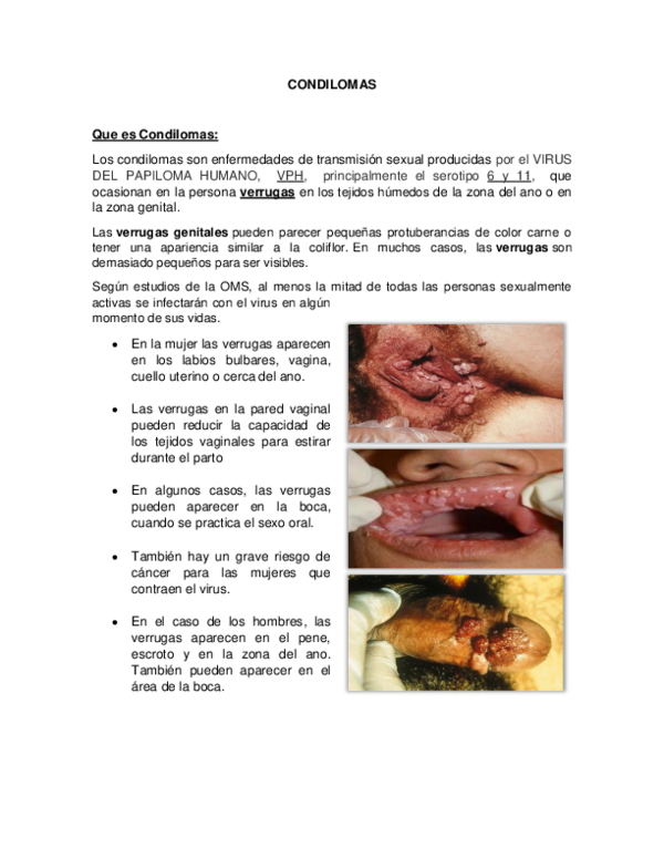 hpv type for warts papilloma a boron