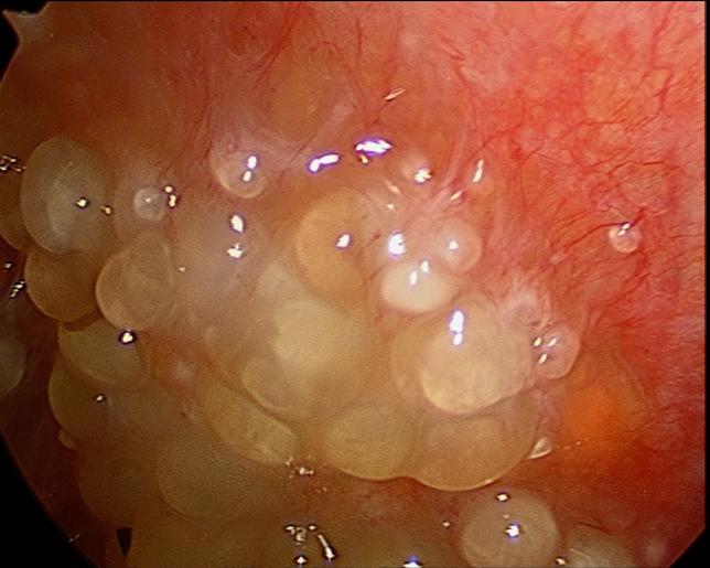 Cancer peritoneal secondary - Cancer peritoneal fluid