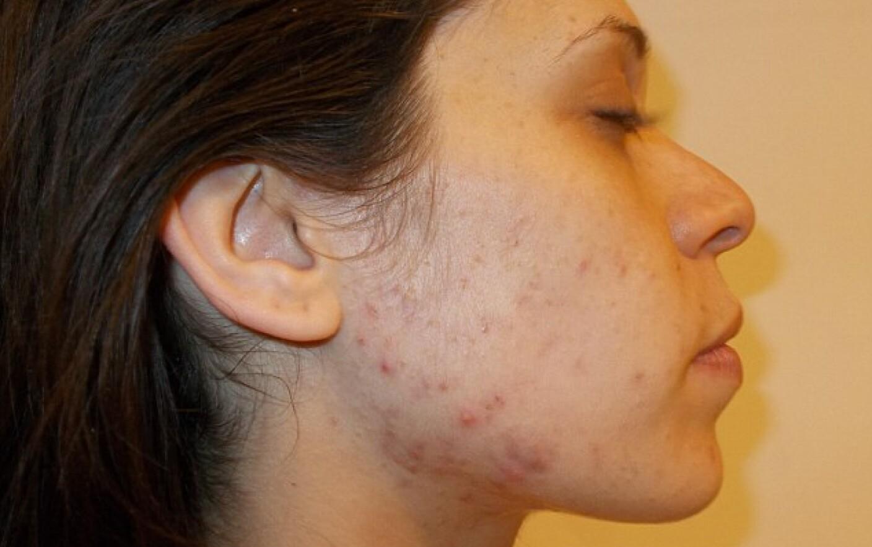 Poate exista viermi provoca acnee