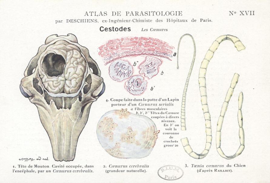 Paraziti v lidske kuzi. Diagnostikalaboratornaya lyamblioza