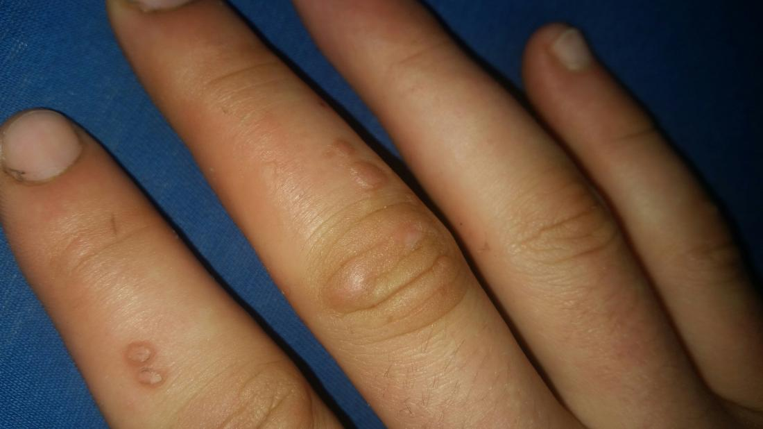 hpv causes warts on hands
