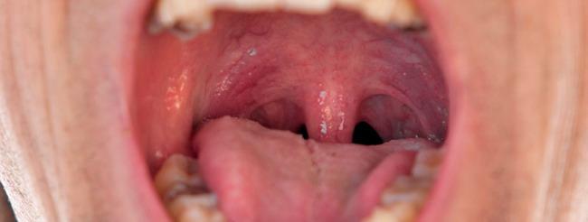 hpv en boca sintomas