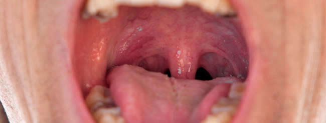 Virus de papiloma en la boca, Vph en la boca sintomas tratamiento, Hpv and papilloma