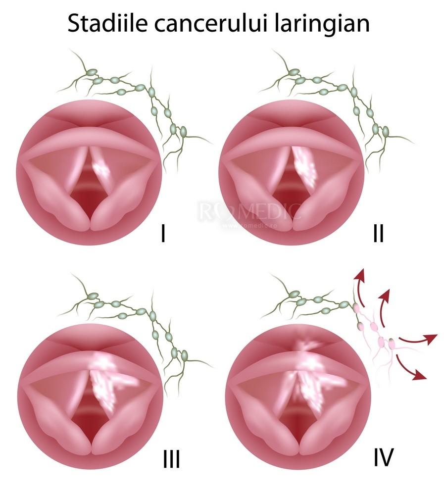 cancer laringian stadiu 4 hpv tongue sores