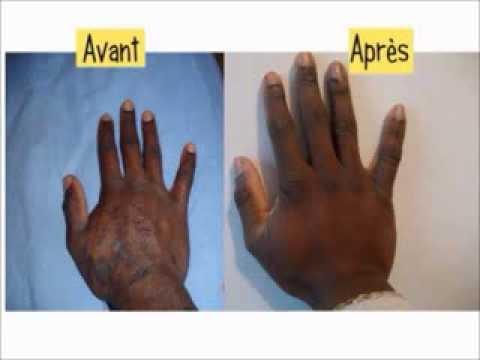 traitement du papillomavirus chez l homme