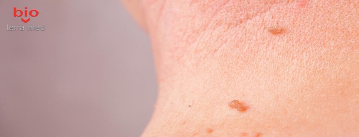 cum se tratează papiloamele pe corp recenzii