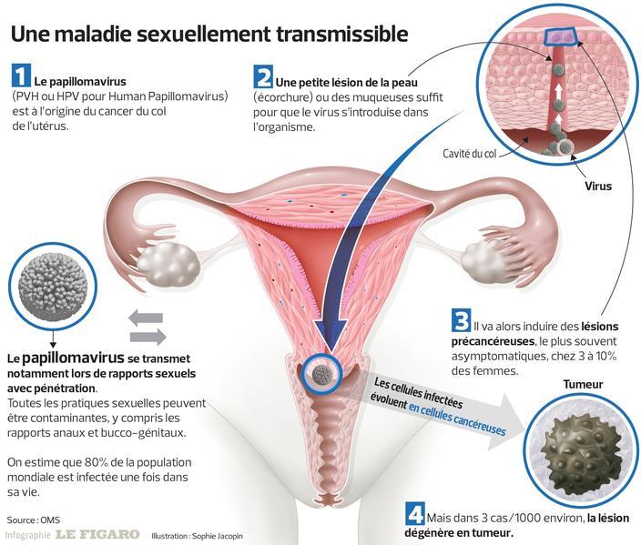 confluent and reticulated papillomatosis reddit cancer de colon bioneuroemocion