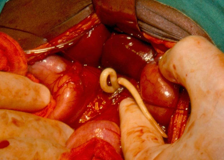 dispozitiv împotriva paraziților din organism - Helminth definition food