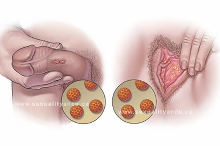 Virus de papiloma en hombres - Tratamiento del virus del papiloma humano en hombres y mujeres