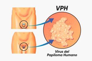 Papiloma vacuna precio, Virus papiloma humano vacuna precio