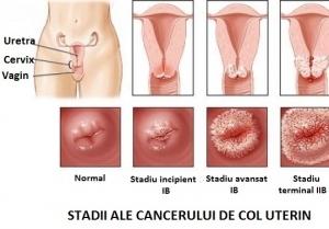 Cel mai înșelător cancer feminin. NU ignorați niciodată aceste simptome
