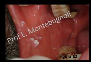 trasmissione papilloma virus bocca clismă după antihelmintice
