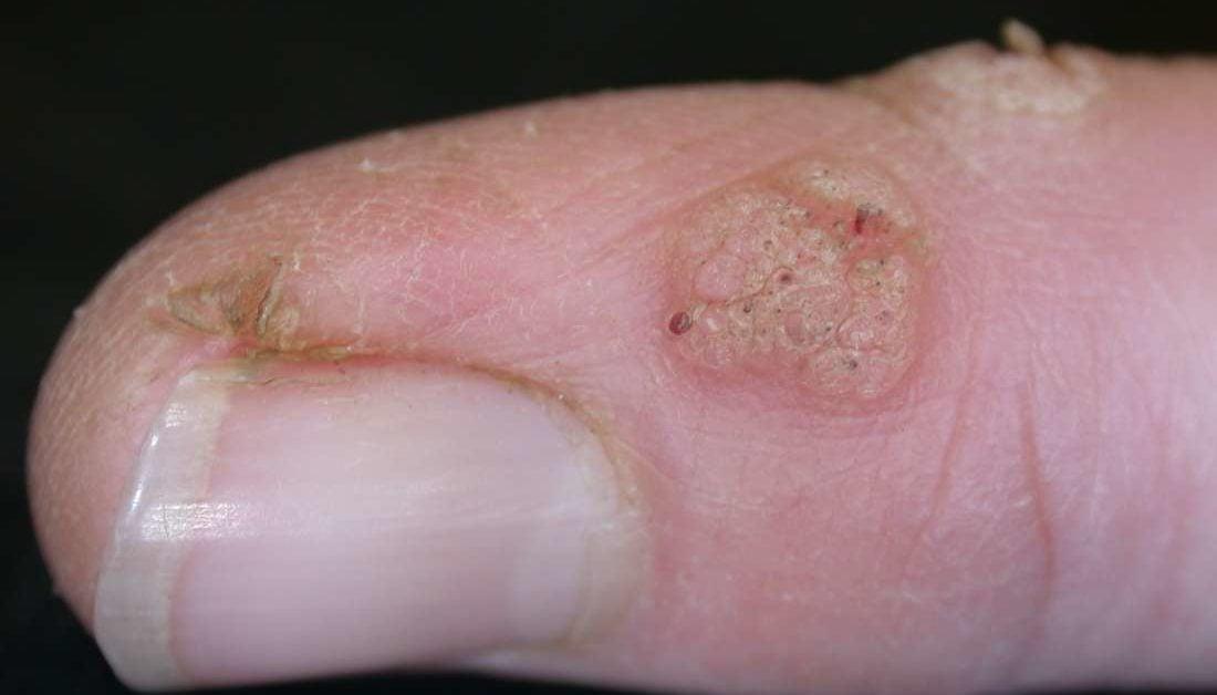 human papillomavirus infection on finger