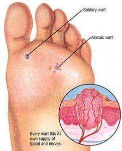 Wart on foot self treatment Plantar wart on foot nhs. Înțelesul