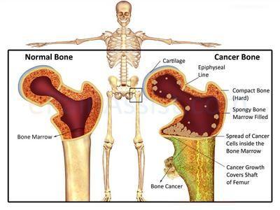 Prostate cancer metastatic bone pain - Leucocite crescute și prostate