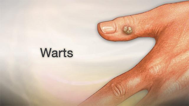 Human papillomavirus bumps