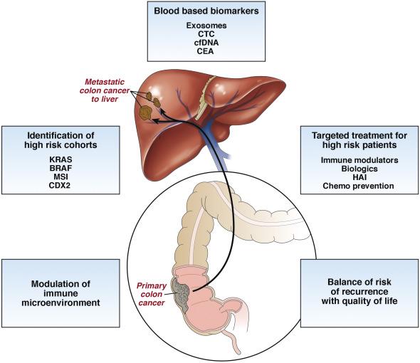 Neuroendocrine cancer spread to liver and bones, Metastatic cancer colon liver