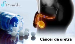Cancerul de ureter