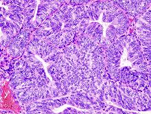 Human papillomavirus and ovarian cancer