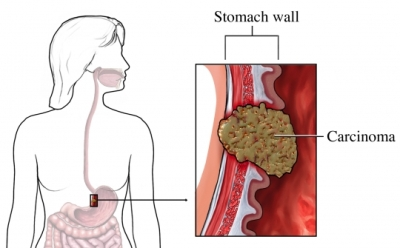 cancer in abdominal wall