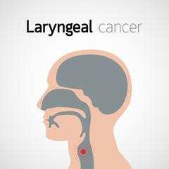 Regim alimentar cancer laringian