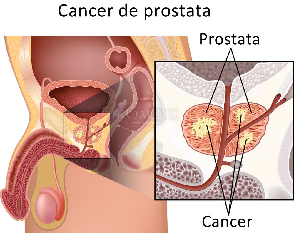 cancerul de prostata cauze hpv impfung jungen private krankenkasse