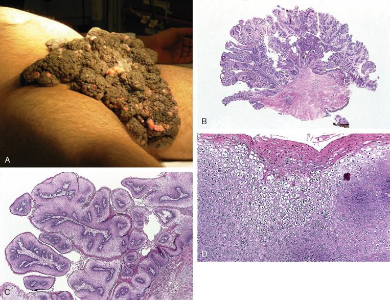 Papilomavirusurile umane (HPV) si bolile pe care le produc