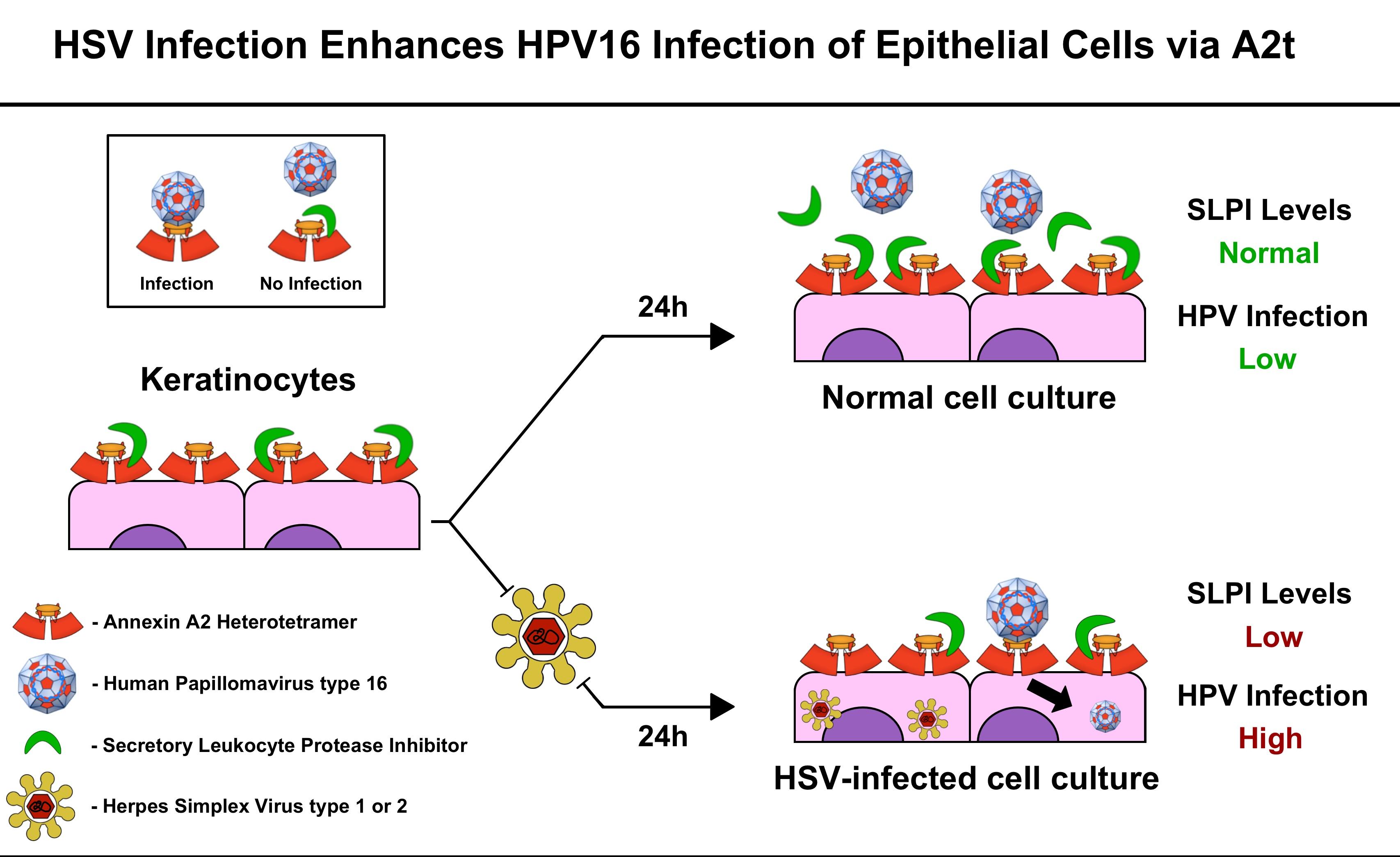 Herpes simplex virus 1, 2 în raclaj (ADN, calitativ)